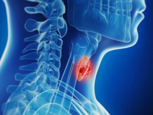 образование в щитовидной железе