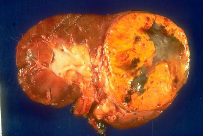 почка пораженная раком