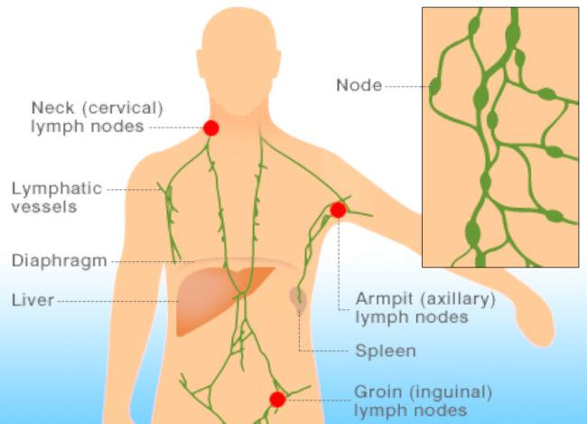 в клеточная лимфома в схеме
