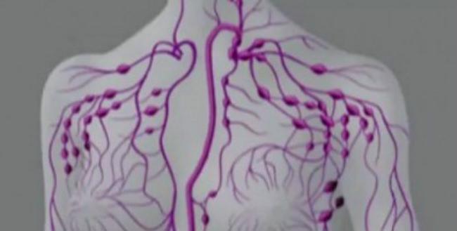 зоны поражения лимфомой