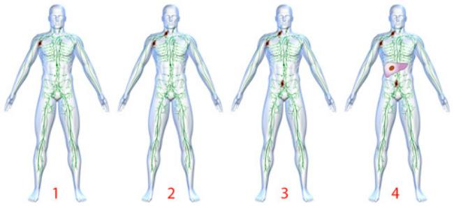 классификация лимфомы