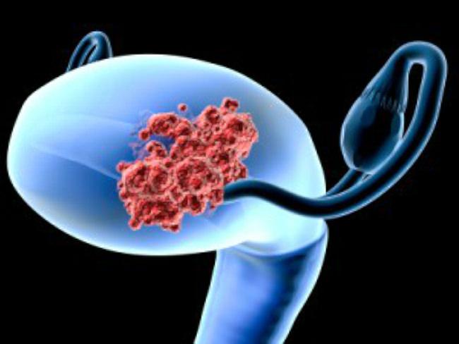 матка пораженная раком графика