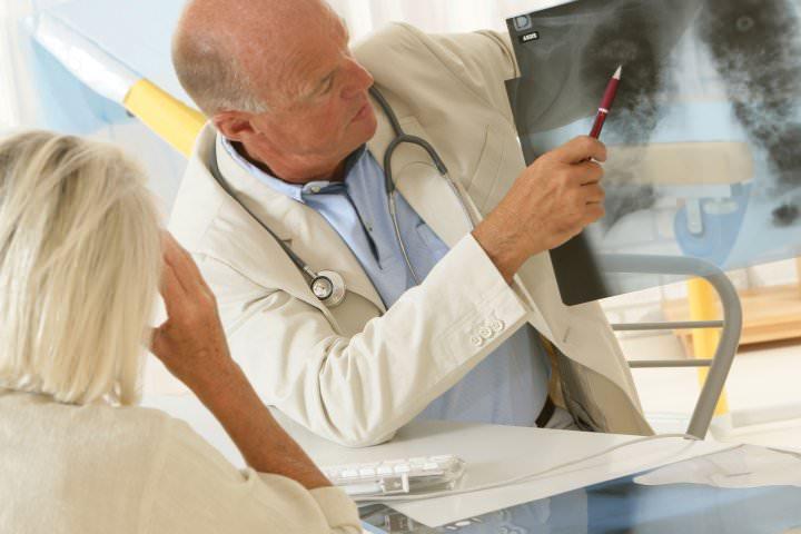 Химиотерапия назначается врачом с учетом стадии рака
