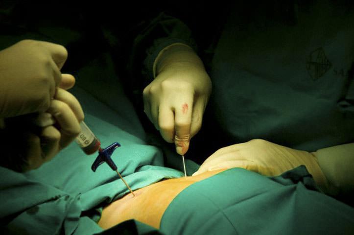 Пункция костного мозга
