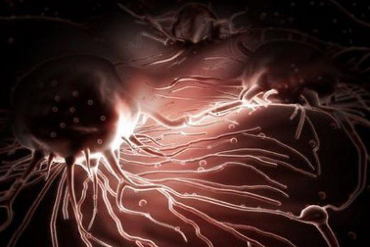 Рак с метастазами