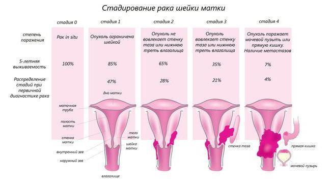Рак шейки матки последствия