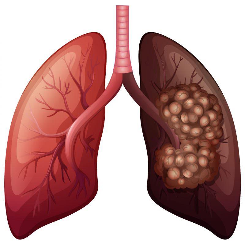 Болезнь дыхательных органов