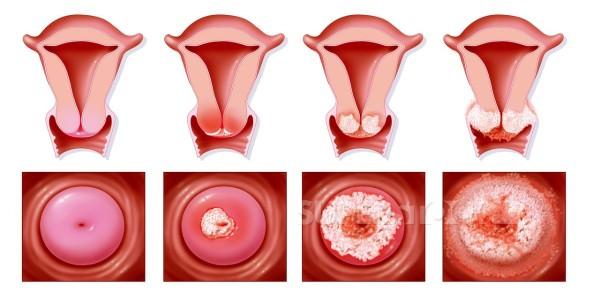 Стадии рака шейки матки. Симптомы и прогнозы при разных степенях РШМ