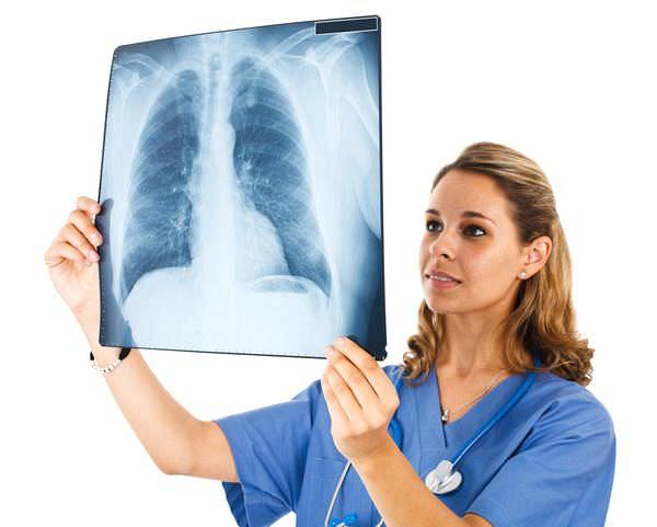 Рак на флюрографии