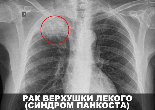Рак верхушки легкого (Синдром Панкоста)