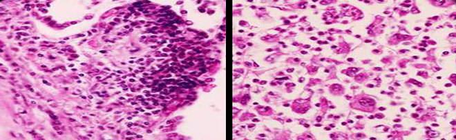 Мелкоклеточный рак легких