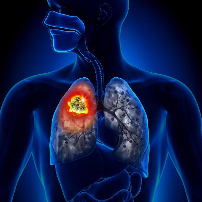 Изображение рака легких
