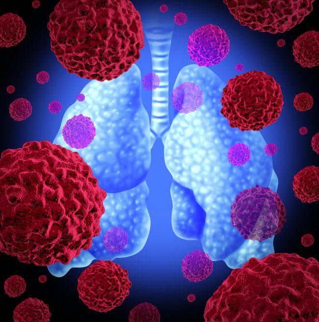 рак легких лечение 4 степени