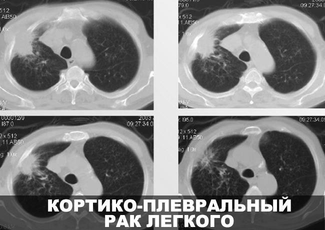 Кортико-плевральный рак легкого