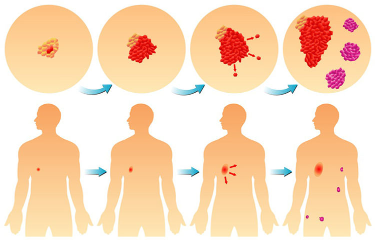 Этапы и скорость развития рака легких