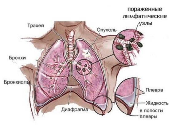 Особенности поражения легких