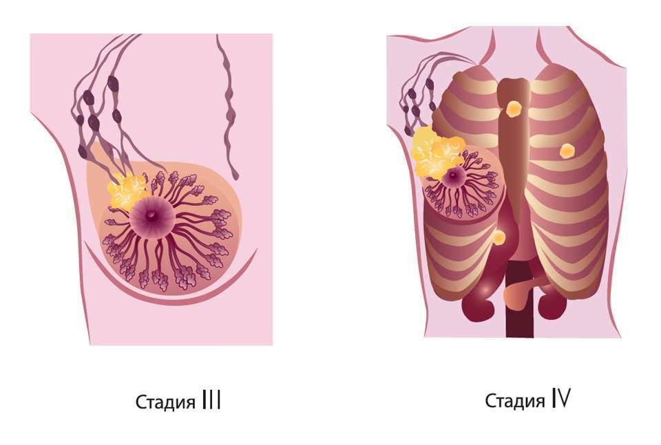 Рак легких 3 и 4 стадии
