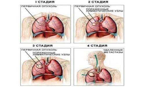 Стадии рака легких