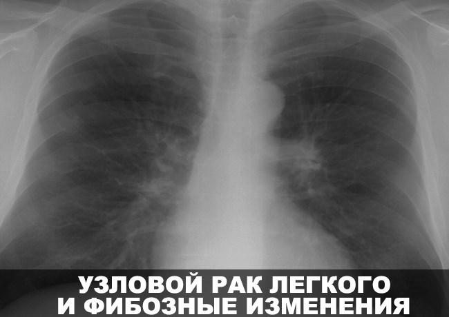 Узловой рак легких