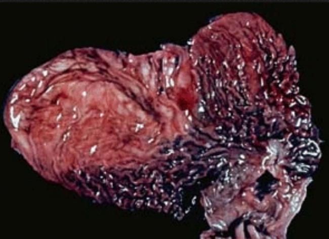 рак желудка 4 стадии в живую