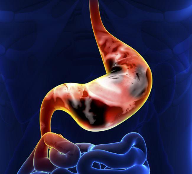 изображение рака желудка