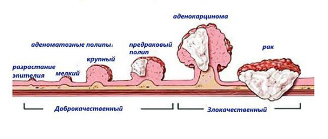 развитие в аденокарциому и рак