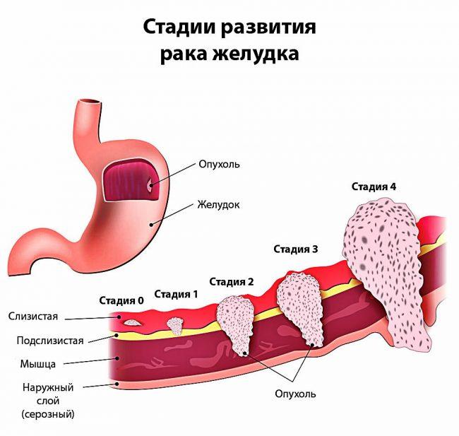 стадии рака желудка схема