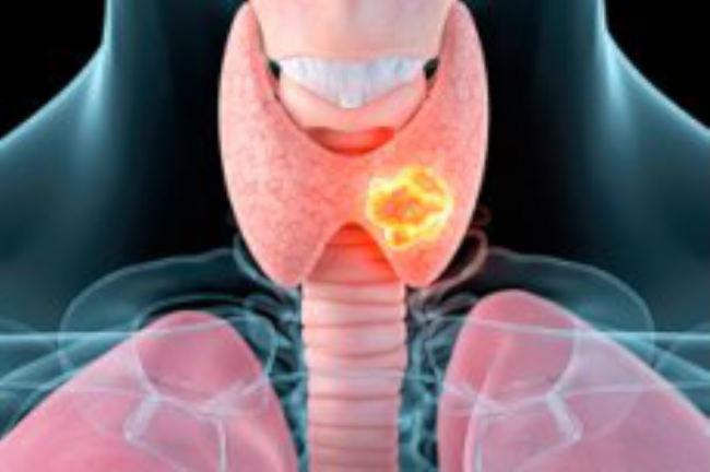 Рак щитовидной железы: симптомы и лечение у женщин