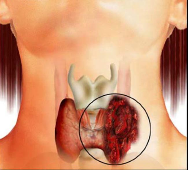 папилярный рак щитовидки