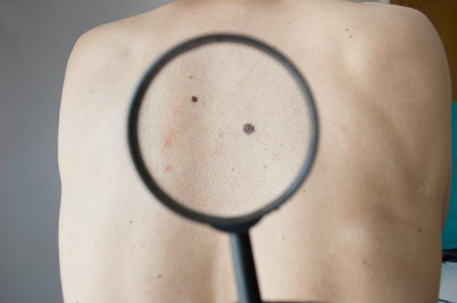 симтомы лимфомы кожи