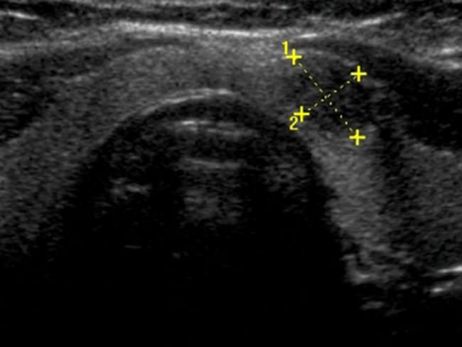 рак щитовидной железы на КТ