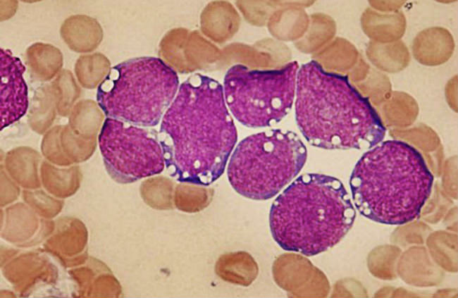 клетки лимфомы брекитта
