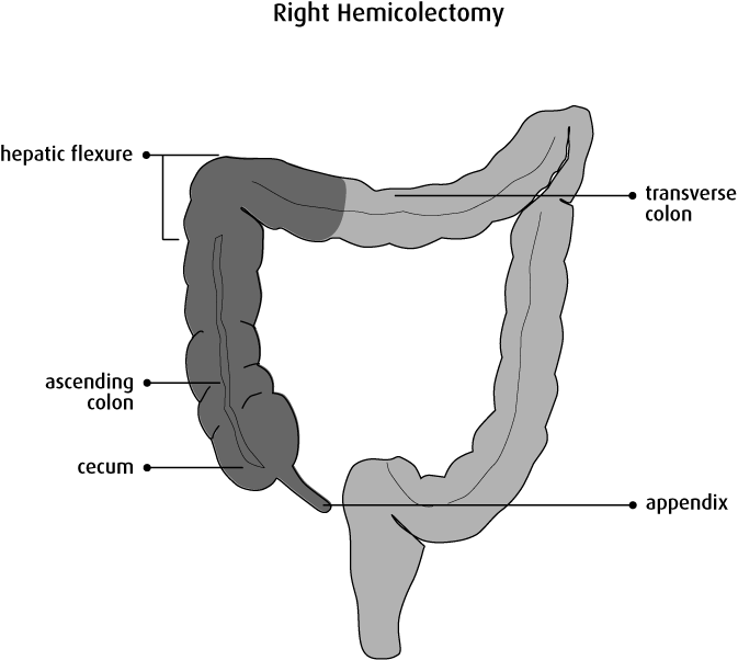 схема кишечника со слепой кишкой