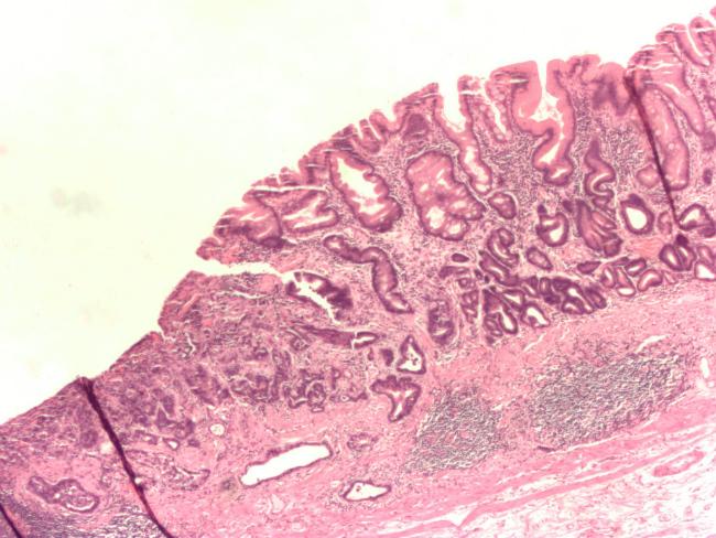 клетки рака двенадцатиперстной кишки