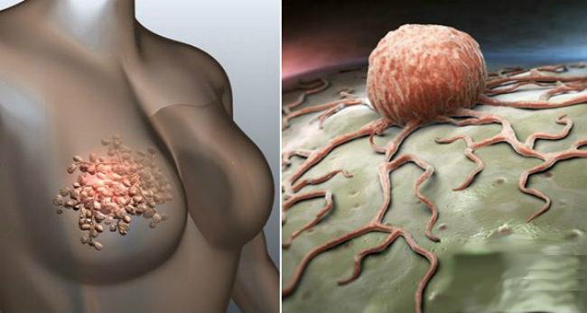 рак молочной железы и раковая клетка графика