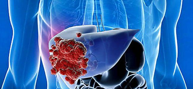 раковые образования на печени