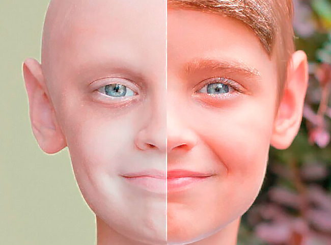 химиотерапия до и после