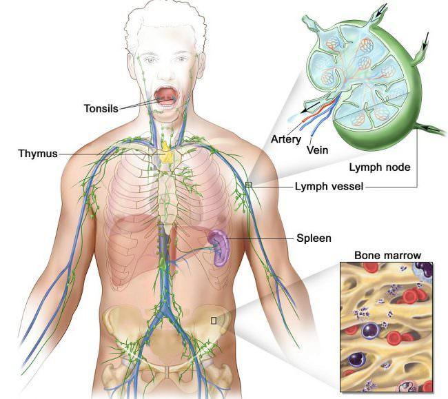 характеристика фолликулярной лимфомы