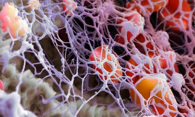 Как повысить лейкоциты после лучевой терапии