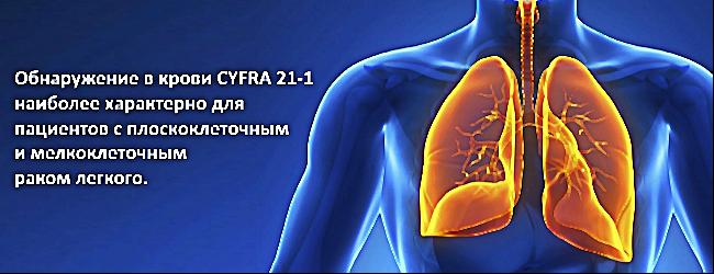 Cyfra 21-1 говорит о раке легкого