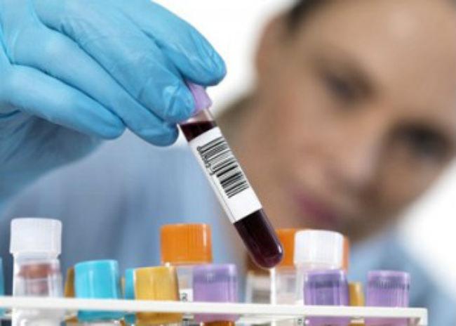анализ на цитокератин