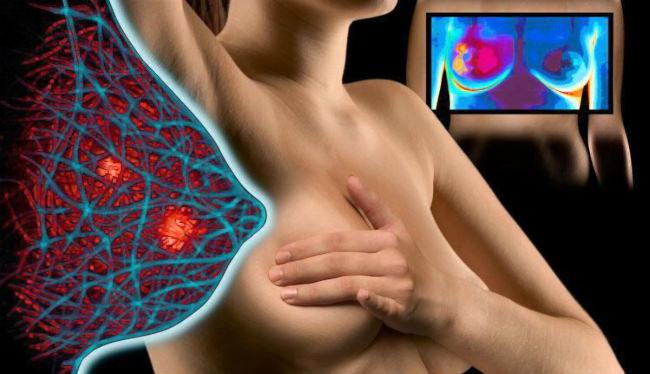 Метастазы в легких при раке молочной железы