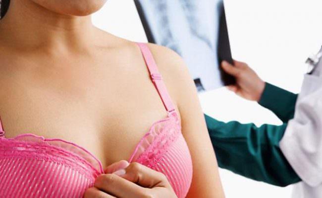 женщина и доктор смотрят снимок молочных желез