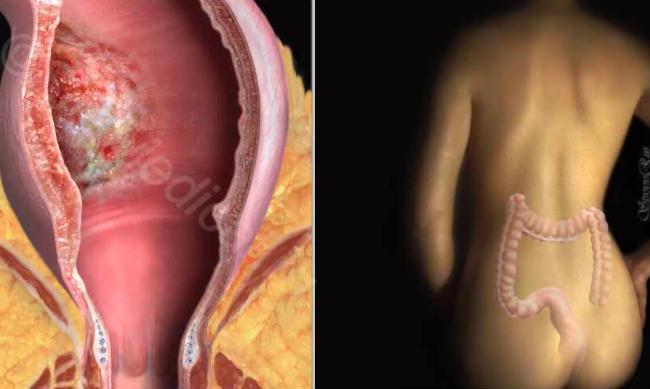 аденокарциома кишечника опухоль