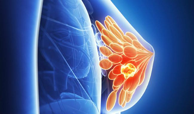 опухоль рак груди графика