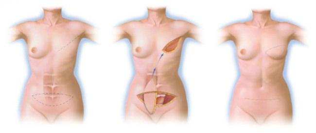 восстановление груди после операции