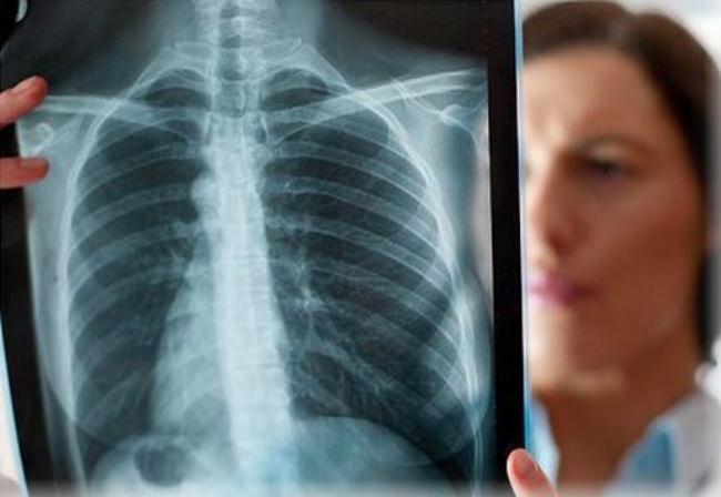 врач держит снимок легких