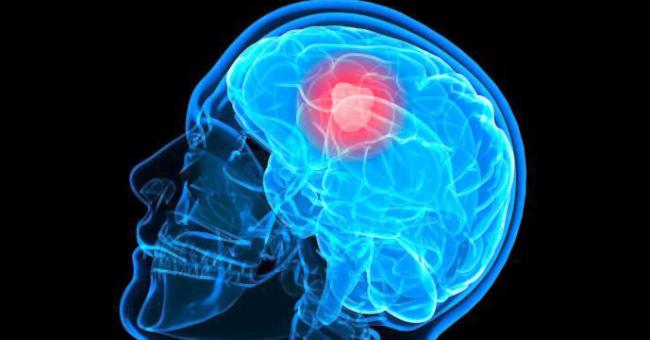 глиома мозга графика