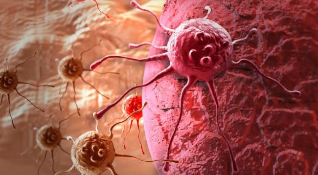 клетки рака микроскоп
