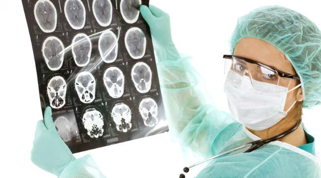 врач показывает снимки головного мозга